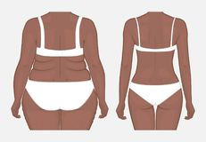 Human body problem_Body weight loss of African American women fr. Vector illustration. Woman body problem obese, in African American female, weight loss to Stock Photography