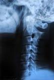 Human body's radiograph Stock Image