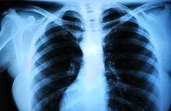 Human body's radiograph - lung Stock Photo