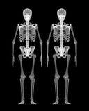 Human body, skeleton Royalty Free Stock Photos