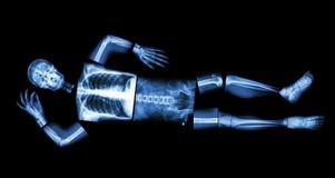 Human bone is sleeping Royalty Free Stock Photography