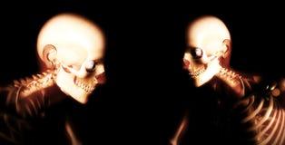 Human Bones 74 stock images