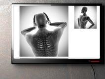 Human bones radiography scan image Royalty Free Stock Images