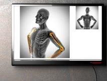 Human bones radiography scan image. Human bones radiography scan. x-ray  image stock photos