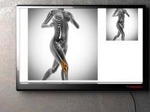 Human bones radiography scan image. Human bones radiography scan. x-ray  image Royalty Free Stock Photo