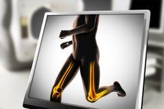 Human bones radiography scan image. Human bones radiography scan. x-ray  image Royalty Free Stock Image