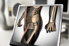 Human bones radiography scan image. Human bones radiography scan. x-ray  image Stock Photography