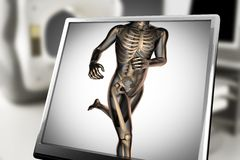 Human bones radiography scan image Stock Images