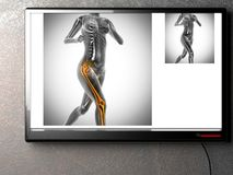 Human bones radiography scan image Royalty Free Stock Photos
