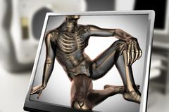 Human bones radiography scan image Royalty Free Stock Photography