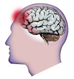 Human brain, cerebellum and headaches. Headache Stock Image