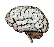 Human brain, cerebellum and headaches. Headache Stock Photography