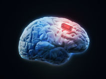 Human brain implant Stock Photo