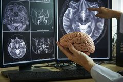Doctor demonstrating human brain anatomy and MRI brain on background. Human brain model on doctor hand. Doctor pointing MRI brain demonstrate brain anatomy stock photo