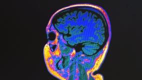 Human brain MRI scan stock video