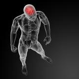 Human brain X ray Stock Photo