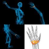 Human carpal bones Stock Photo