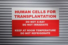 Human cells for transplantation Royalty Free Stock Image