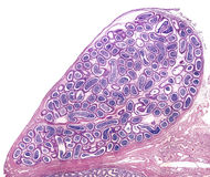 Human epididymis. In their anatomical location joined to testicle located in the bottom border of the image. The epididymal duct is a long tube very coiled Royalty Free Stock Photography