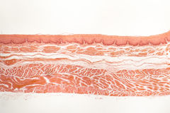 Human esophagous mucosa Stock Images