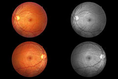 Human eye anatomy, retina, optic disc artery and vein etc. Taking images with Mydriatic Retinal cameras stock photography