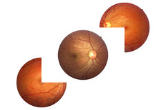Human eye anatomy, retina, optic disc artery and vein etc. Royalty Free Stock Photo