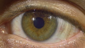Human Eye. Close-up of man eye that blink, crazy looks around, looks surprised, fell asleep, tired eyes, eyes opened, Brown eyes, and just sight forward. ULTRA stock footage