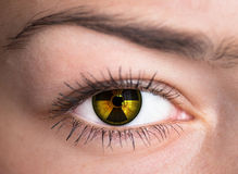 Human eye. Concept photo. Human eye with radiation hazard symbol - concept photo royalty free stock photo