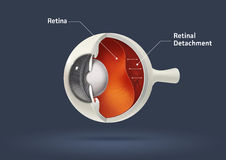 Human eye - retinal detachment stock illustration