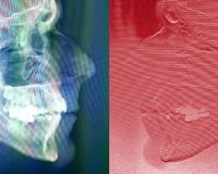 Human face on profile radiograph. In blue and red Stock Images
