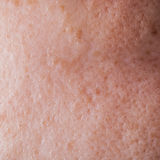 Human face skin texture Royalty Free Stock Images