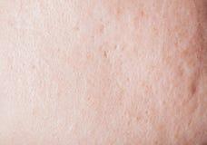 Human face skin texture Royalty Free Stock Image