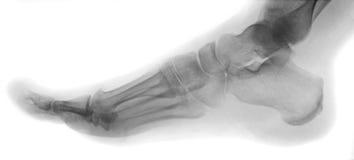 Human Foot. Negative x ray of human foot royalty free stock images