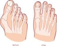 Human foot deformity. Stock Image