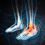 Human foot pain Royalty Free Stock Images