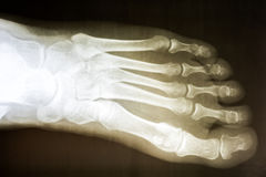 Human Foot X-Ray. On Black Background stock photos