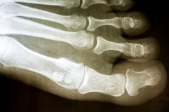 Human Foot X-Ray. On Black Background stock images