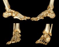 Human foot scan. 3D Xray / CT image of the human foot Vector Illustration
