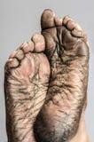 Human foot skin. Stock Photo