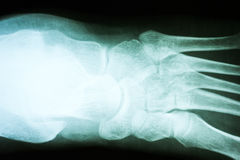Human Foot X-Ray Royalty Free Stock Photos