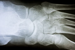 Human Foot X-Ray Stock Photo