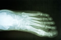 Human Foot X-Ray Royalty Free Stock Image