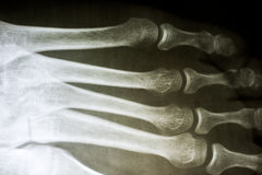 Human Foot X-Ray Stock Photos