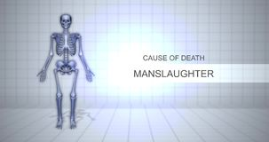 Human Forensic Autopsy Animation Concept - Cause of Death - Manslaughter. 1-5-2018 stock footage