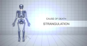 Human Forensic Autopsy Animation Concept - Cause of Death - Strangulation. 1-5-2018 stock video