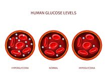 Free Human Glucose Levels Hyperglycemia, Normal, Hypoglycemia. Hematology Vector Diagram With Blood Vessel, Erythrocytes And Stock Photo - 118192470