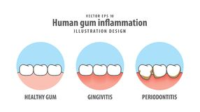 Human gum inflammation in circle illustration vector on white   Royalty Free Stock Image