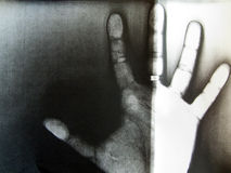 Human hand. Removing on xerox Stock Images