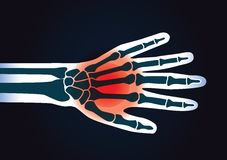 Human hand bone have a red signal. This illustration about foot pain Royalty Free Stock Photo