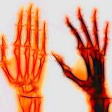 Human hand. Illustration Royalty Free Stock Photography